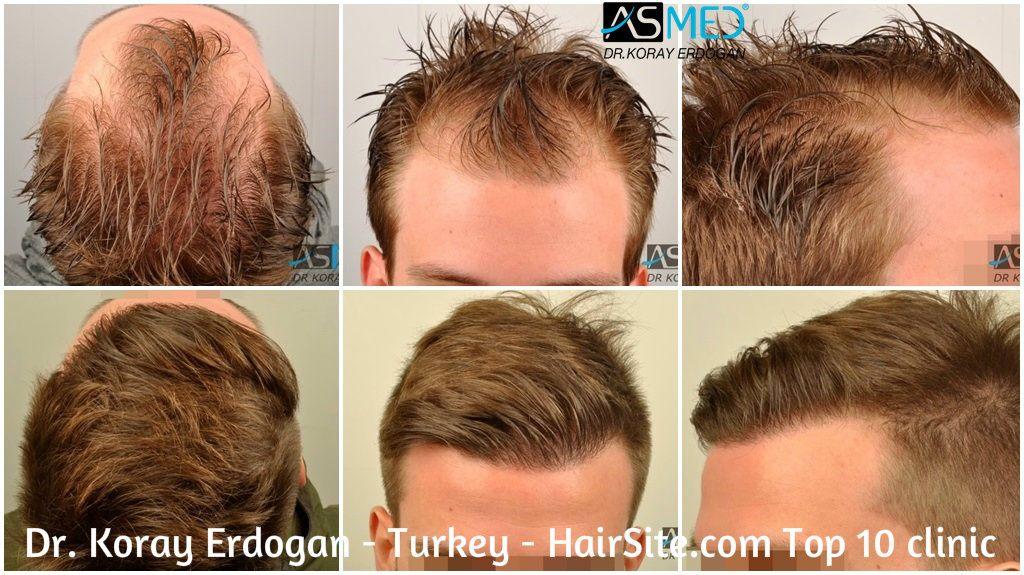Dr Koray Erdogan Hair Transplant Reviews Turkey Images Hairsite Com