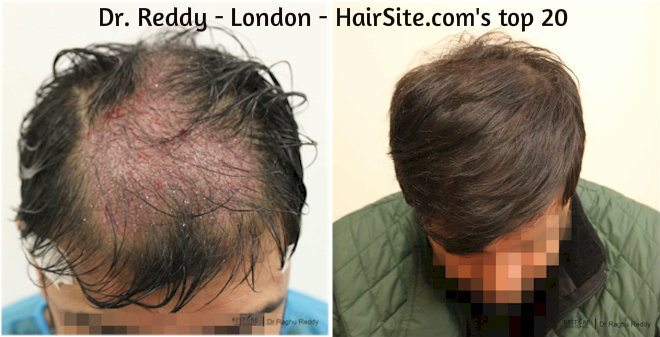 dr reddy hair transplant reviews london