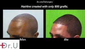 Dr Umar Hair Transplant Results