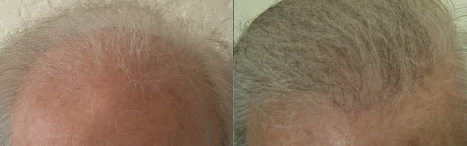 dr woods hair transplant results australia