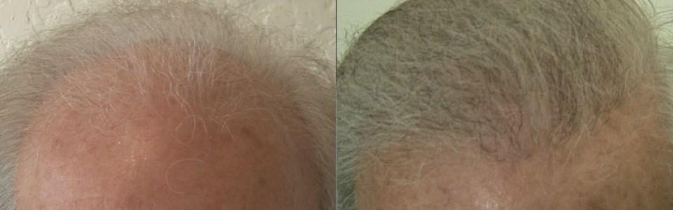 dr woods hair transplant results australia