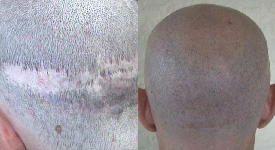 dr woods hair transplant result