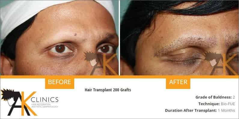 eyebrow-transplant-result-1