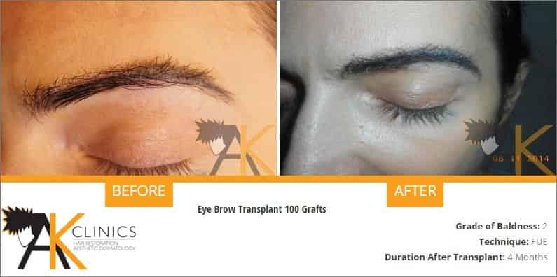 eyebrow-transplant-result