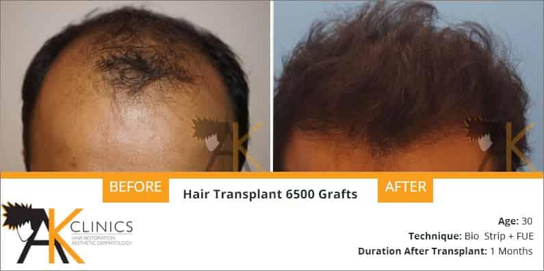 hair-transplant-result-19