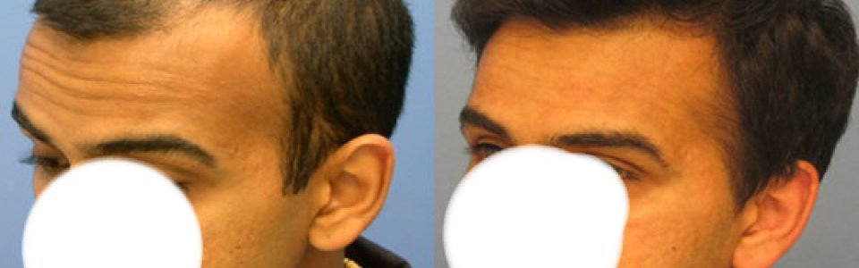 Hasson Wong hair transplant reviews Vancouver