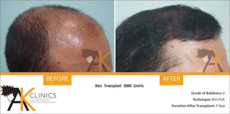 india-bio-fue-hair-transplant-11