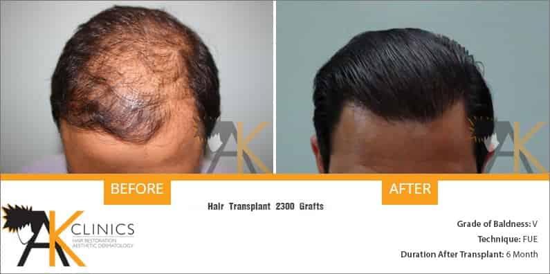 india-fue-hair-transplant-12