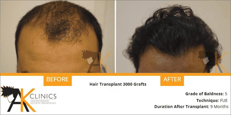 india-fue-transplant-result-2