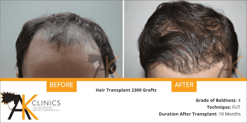 india-fut-strip-hair-transplant-result-6