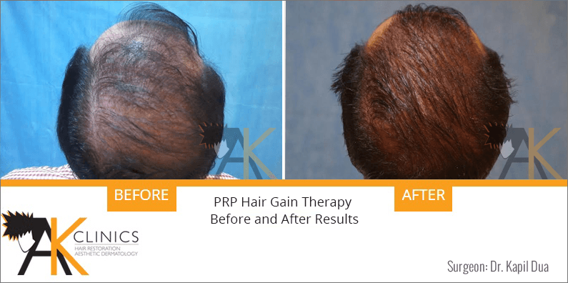 prp-hair-therapy-results-5