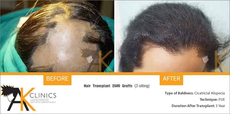 women-circatricial-alopecia-hair-transplant-result-1