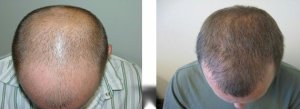 ziering medical hair transplant reviews beverly hills