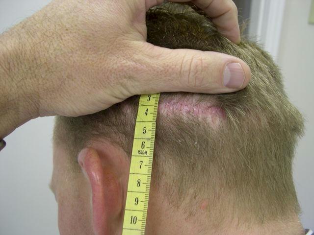 toronto hair transplant scar repair using botox