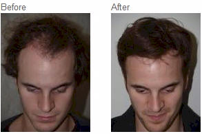 hair transplant nyc best om hair