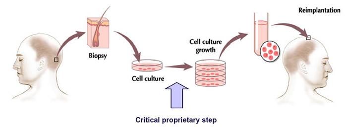 Intercytex TrichoCyte Hair Regeneration Therapy