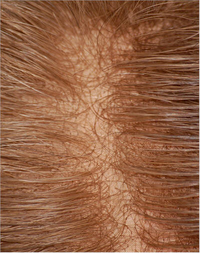lacefron hair replacement system uk