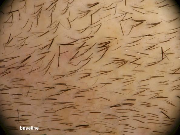 histogen hair stimulating complex trial result photos
