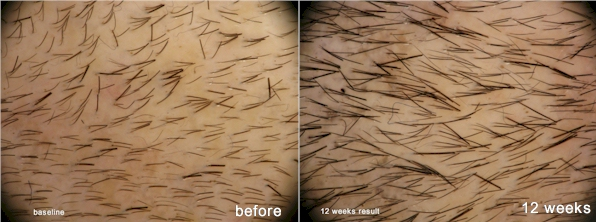 Histogen Hair Stimulating Complex 12 weeks before and after results