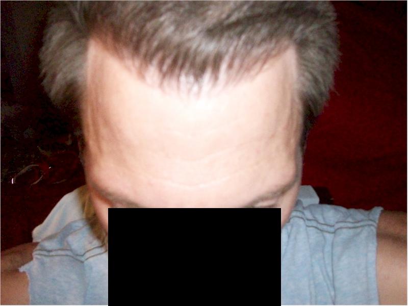 HairSite Hair Transplant Charity Repair Candidate