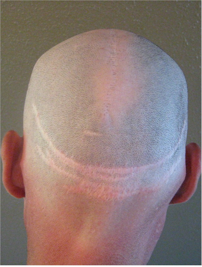 Hair surgery donor site scars repair London UK