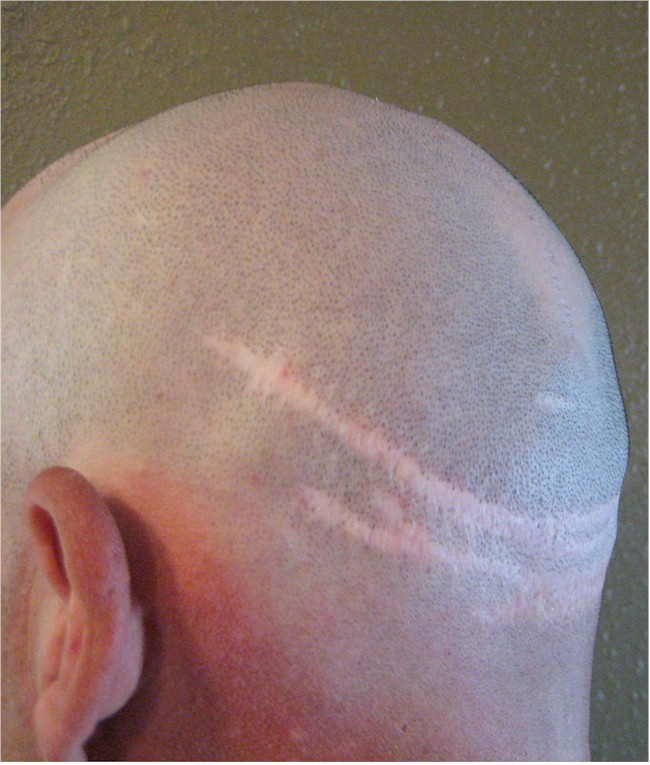 Hair Transplant Charity Repair - strip scars