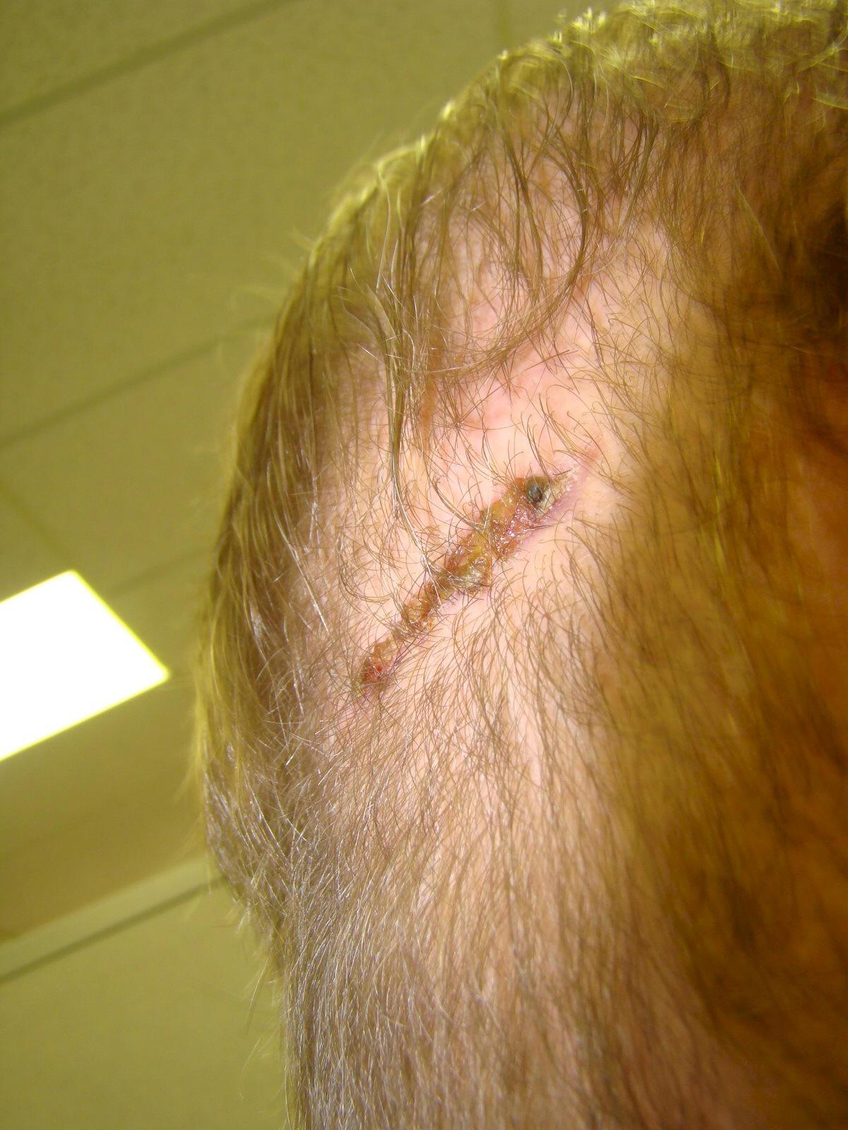 Acell hair transplant scar repair photo 1 month