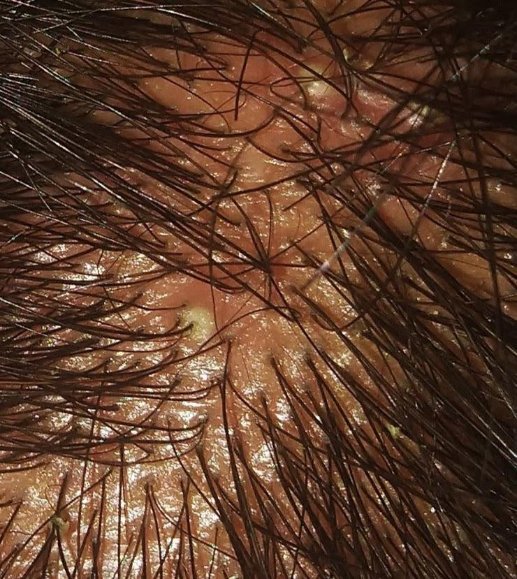 You are currently viewing Scalp Folliculitis