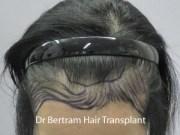women hairline design dr bertram