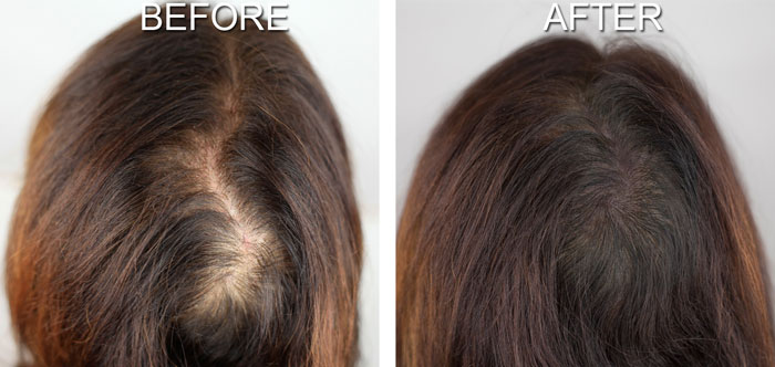 Understanding Hair Loss And Its Problems Hair