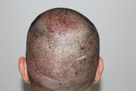 DR.KESER-2168 GRAFTS-ANKARA TURKEY | Hair Transplant in Turkey