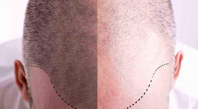 How to Have Best Hair Transplant in Istanbul