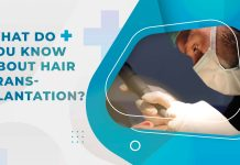 what do you know about hair transplantation
