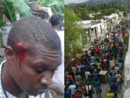 Petit-Goaves :13 manifestants blessés par balles