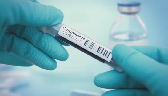 Coronavirus: 86 nouvelles contaminations et 1 décès de plus