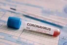 Haïti compte 8224 cas de coronavirus