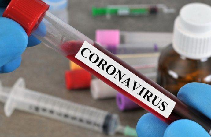 Coronavirus : 82 nouvelles contaminations enregistrées par les autorités sanitaires