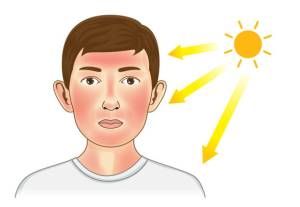 حروق الشمس وتبييض الوجه