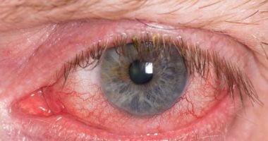 أضرار نقص فيتامين أ على العين