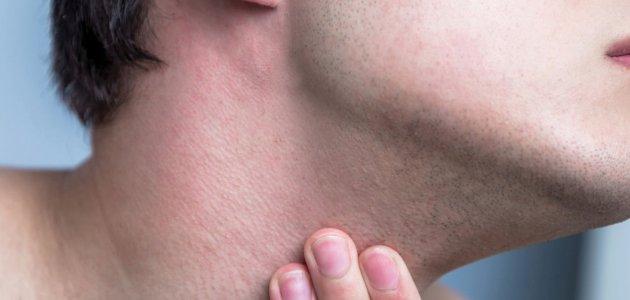 التهاب الجريبات الشّعرية … تعرف معنا على الأسباب وطرق العلاج