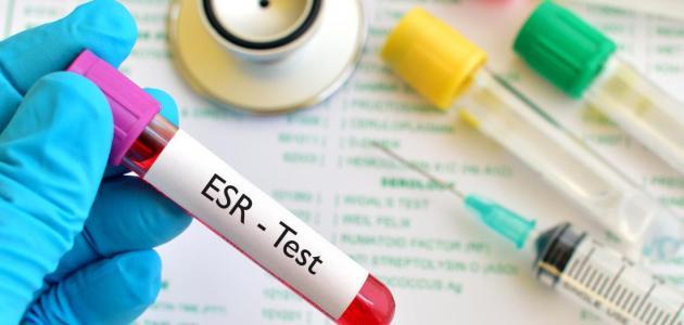 سرعة ترسيب كريات الدم الحمراء دليلك الشامل لفهم المعدلات الطبيعية والمرضية