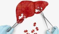 اعراض فشل الكبد .. و ما الفرق بين الشكل الحاد والمزمن؟