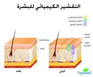 أنواع التقشير الكيميائي