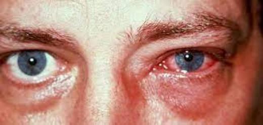 ما الذي يسبب التهاب العين؟