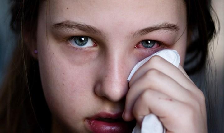 Tips Mengatasi Mata Bengkak Dan Berair yang Benar