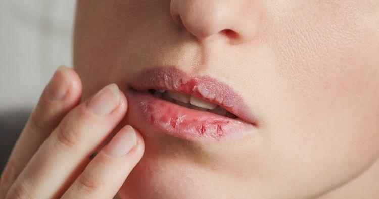 Begini Ternyata Cara Mengatasi Bibir Kering. Perlu Kesabaran Ketika Melakukannya