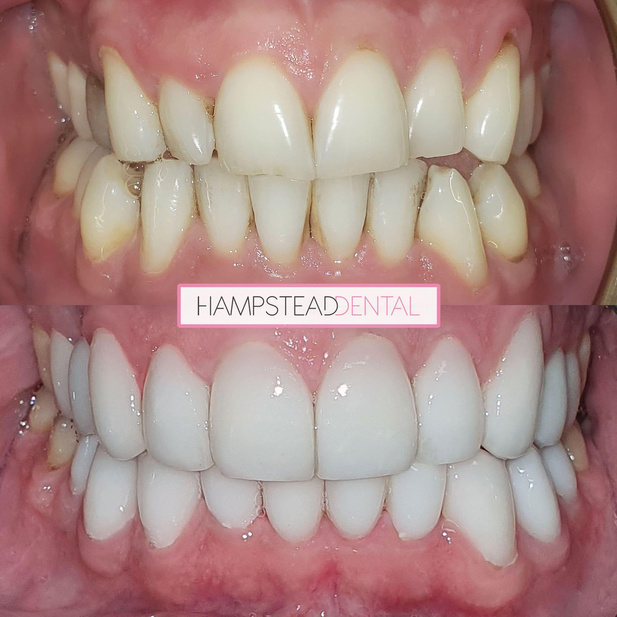https://i0.wp.com/hampsteaddental.com.au/wp-content/uploads/Teeth-Image-min.jpg?fit=2000%2C2000&ssl=1