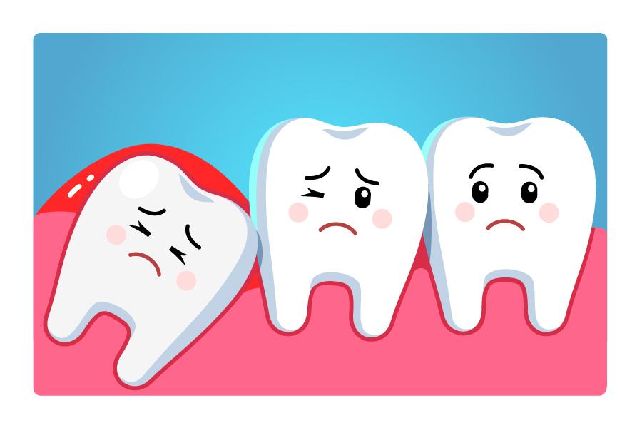 https://i0.wp.com/hampsteaddental.com.au/wp-content/uploads/Wisdom-Teeth-4.jpg?fit=900%2C600&ssl=1