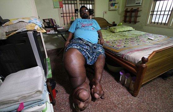 220161716639387هندى-ارون-رازاسنيج-أصيبت-ساقه-اليمنى-بتضخم-(1)