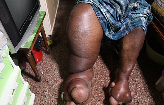 220161716639388هندى-ارون-رازاسنيج-أصيبت-ساقه-اليمنى-بتضخم-(2)